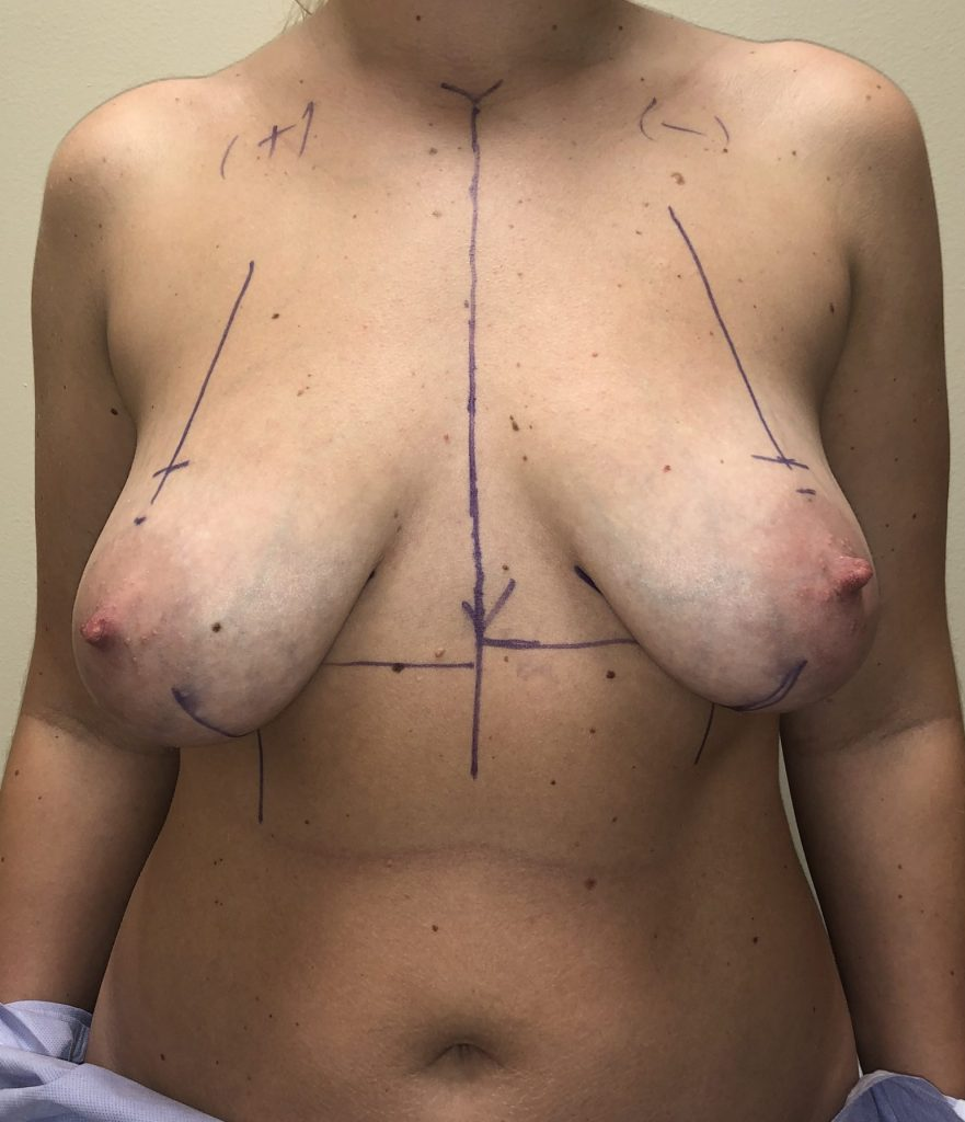 Breast lift preop